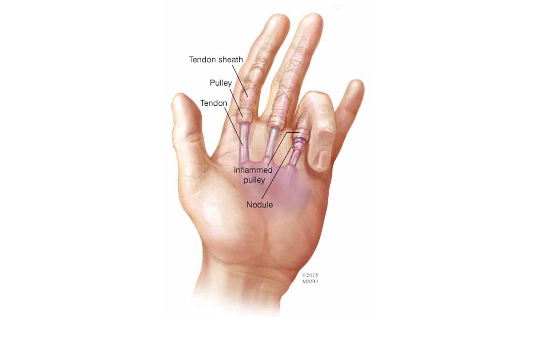 腱鞘炎 手術